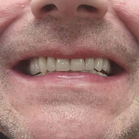 Mobile Denture Repair Service