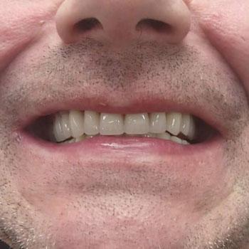 Mobile Denture Repair